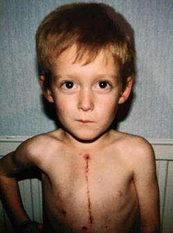 Kenny Wilson aged 5 with the operation scar he calls his 'zip'.